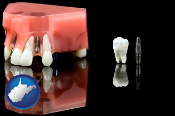 a titanium dental implant and wisdom tooth - with West Virginia icon