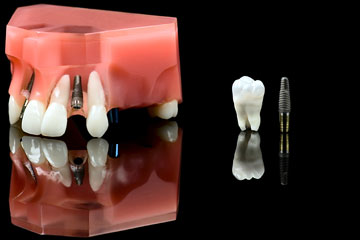 a titanium dental implant and wisdom tooth